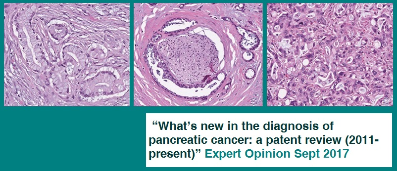 ▪ What's new in the diagnosis of pancreatic cancer: a patent review (2011-present)